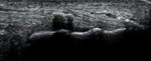Figure 3. Calcification (bony lump) in the Achilles tendon.