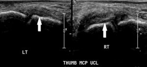 Figure 2. Partial tear of the UCL as demonstrated on ultrasound.