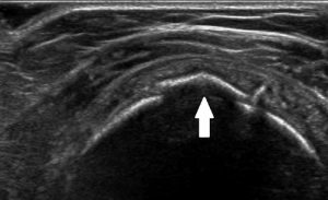 Figure 1. Avulsion fracture as demonstrated on ultrasound.