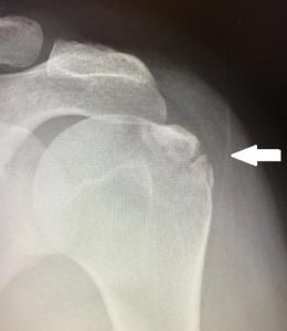 Figure 2. Avulsion fracture as demonstrated on xray.