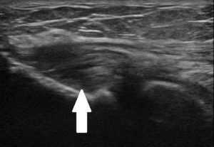 Figure 2. Thickening of common exetnsor tendon (tendinopathy).