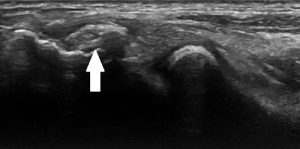 Figure 4. Calcification of the common extensor tendon.