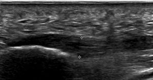 Figure 2. A thickened plantar fascia as demonstrated on ultrasound.