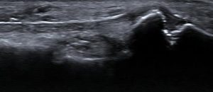 Peroneal Brevis Avulsion Fracture