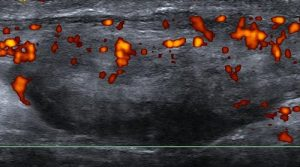 Figure 3. Inflammation evident on power doppler mid portion Achilles tendinopathy