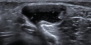 Figure 1. Bakers Cyst as demonstrated on ultrasound