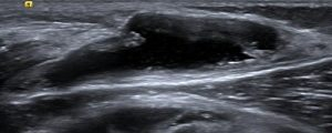 Figure 2. Bakers Cyst as demonstrated on ultrasound in longitudinal view