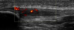 Figure 3. Patella Tendinopathy with associated inflammation on power doppler.