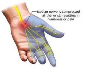 Figure 1. Carpal Tunnel Symptoms