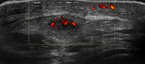 Figure 2. Patella tendinopathy with associated inflammation on power doppler