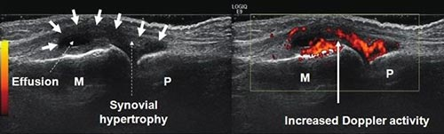Figure 1. Synovial Hypertrophy and Active Synovitis