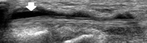 Figure 2. Tenosynovitis (inflammation tendon sheath)